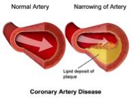 Figure 1: Illustration of a healthy artery compared to an artery with plaque build-up. Taken from reference (2).